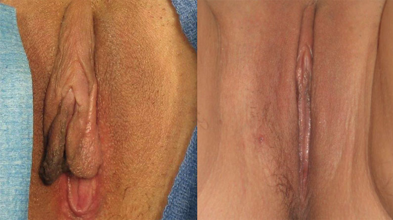 Before and After Designer Laser Vaginoplasty at Cosmetic Gynecology Clinic, Chennai