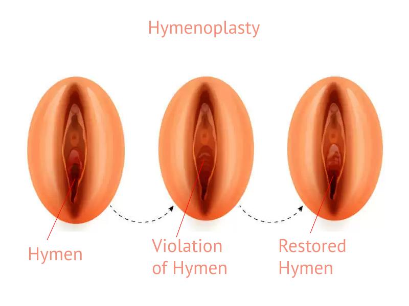Hymenoplasty Specialist in Chennai - Cosmetic Gynecology Clinic