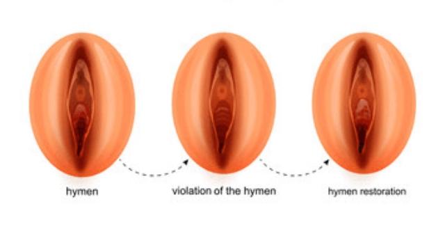 Hymenoplasty (Hymen restoration) - cosmetic gynecologist in chennai