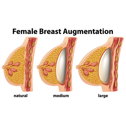 breast augmentation surgery in chennai dr deepa ganesh