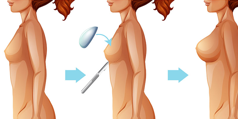 Breast Augmentation – Augmentation Mammoplasty