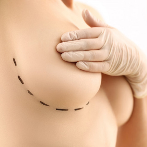 breast-lift-surgery-in-chennai-cosmetic-gynecologist-deepa-ganesh-