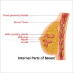 internal-part-of-breast-lumps-in-breast-doctor-chennai-500