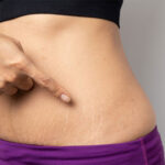 stretch-marks-pregnancy-women-lightening-doctor-chennai-deepa-ganesh