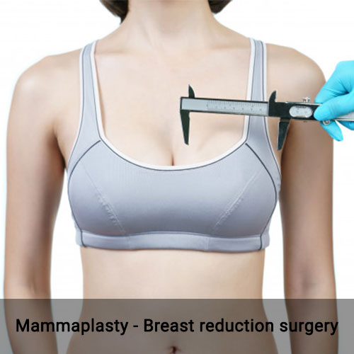 mammaplasty-breast-reduction-surgery-in-chennai-dr-deepa-ganesh