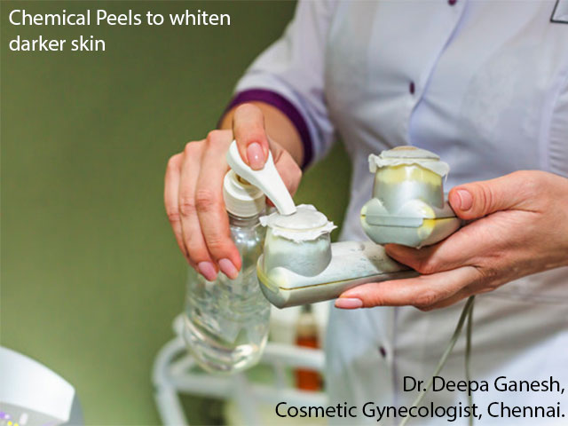 Chemical peels for genital skin lightening whitening in chennai